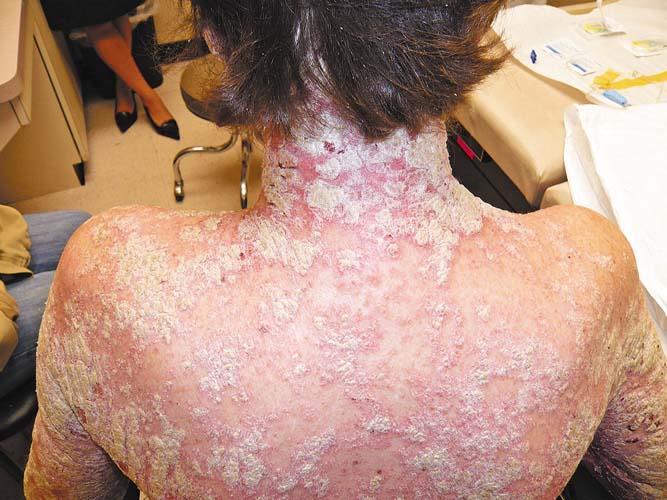 Схема лечения псориаза