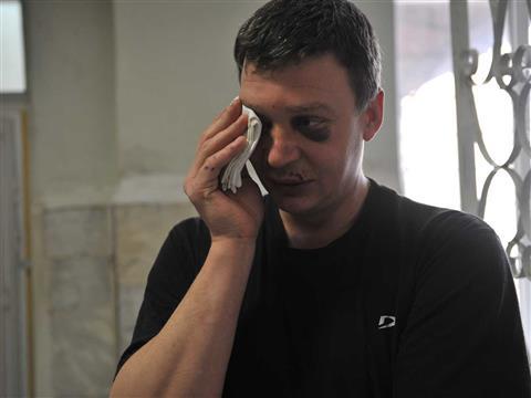 Самарца избили пассажиры выехавшего на тротуар автомобиля (видео)
