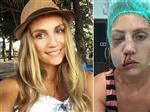 Тольяттинская модель обвинила мужа в жестоком избиении