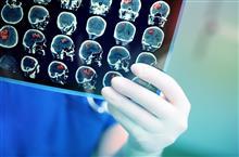 Береги голову смолоду: поговорим об инсульте