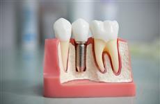 Что делать, если не хватает зуба, или Какой метод имплантации выбрать