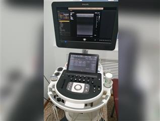 """Шесть оренбургских больниц получили УЗИ-аппараты по нацпроекту """"Здравоохранение"""""""